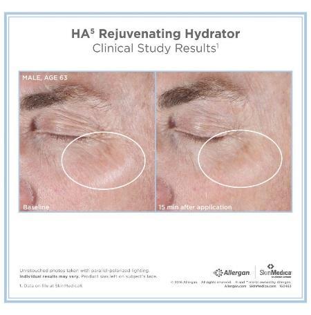 HA5 Skin Rejuvenating Hydrator Beachwood
