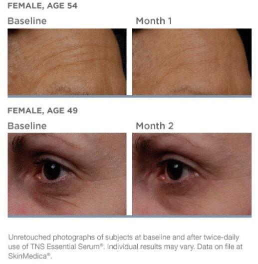 SkinMedica's TNS Essential Serum Patient photos in Beachwood